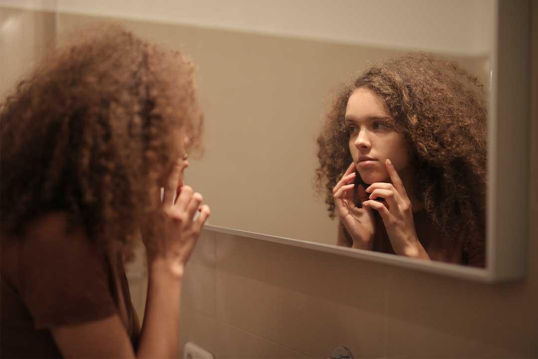 acné, au secours j'ai la peau stressée