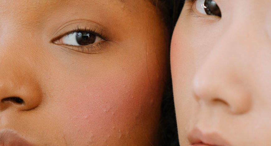 peau stressée, problèmes de peau assuré